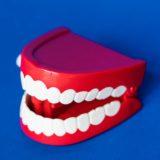 malocclusione distefano dentista