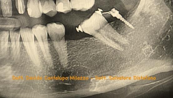 ortodonzia preprotesica catania