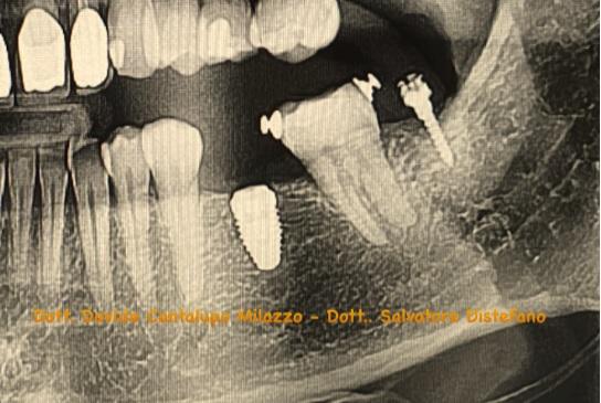 ortodonzia preprotesica distefano dentista catania