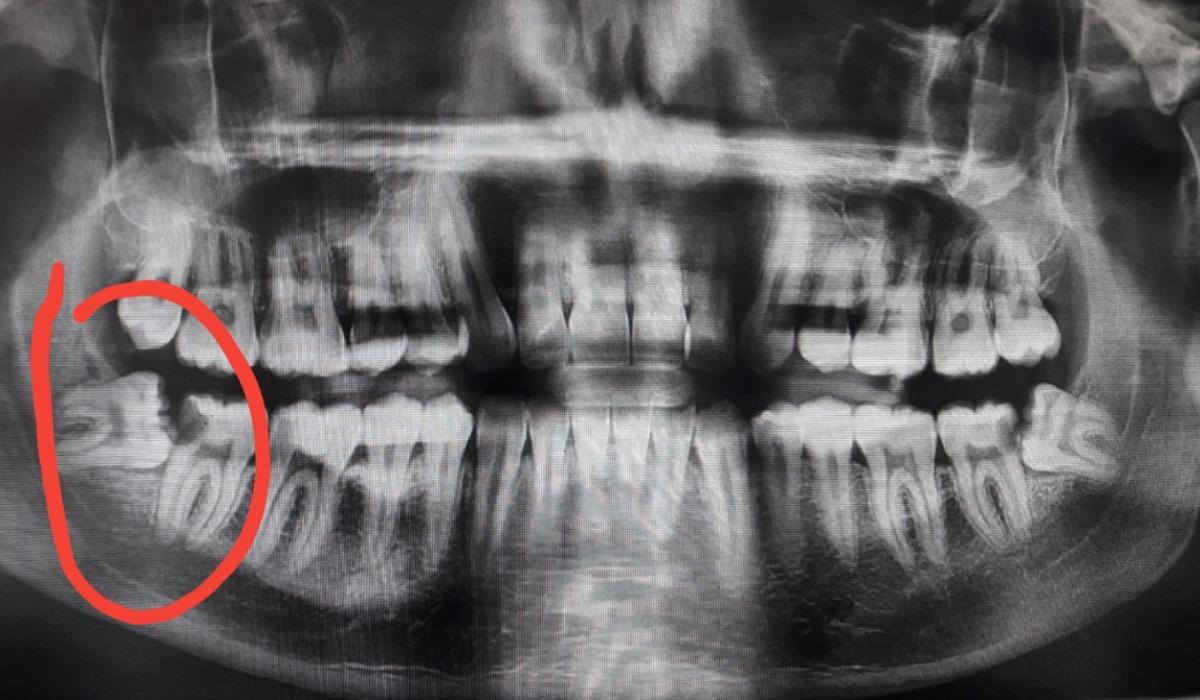 dente-del-giudizio-distefano-1200x700.png