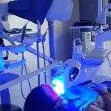 sbiancamento dentale dentista catania distefano